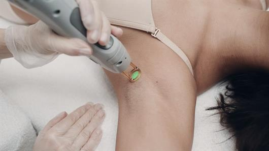 cold laser hair removal reviews