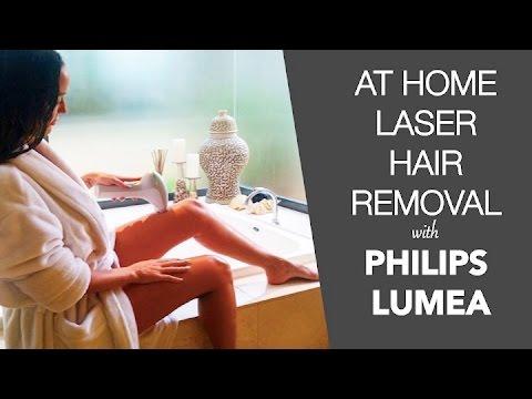 ipl hair removal perth reviews